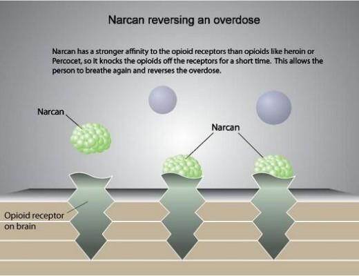 Narcan reversing an overdose